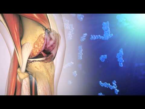 Hyaluronic Acid and Osteoarthritis of the Knee