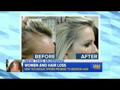 New Treatment Offers Hope for Women With Hair Loss