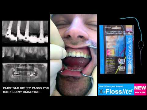 Cleaning your implants with X-Floss / Front Bridge