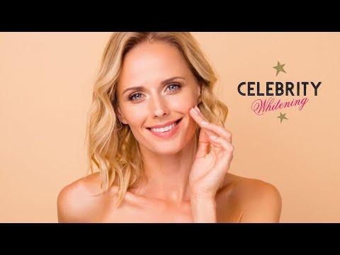 Celebrity Whitening  Teeth Whitening Training Video