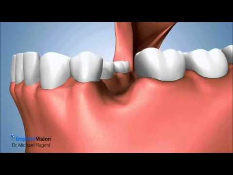 Socket Preservation after tooth extraction.