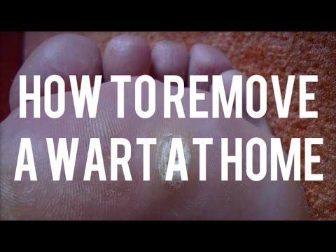 How to Remove a Wart at Home