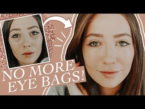 How I Got Rid Of Under Eye Bags/Dark Circles For Good!