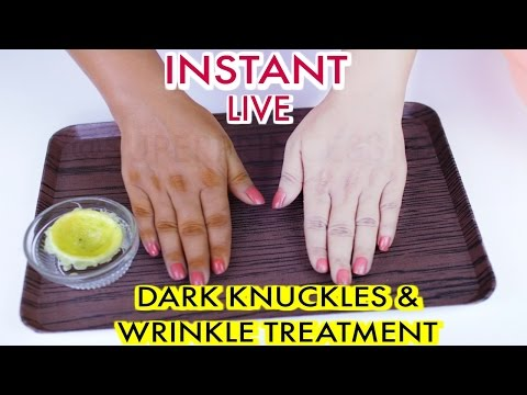 How To Whiten Dark Knuckles And Treat Wrinkles ,Homemade Sun Tan Removal Remedy| SuperPrincessjo