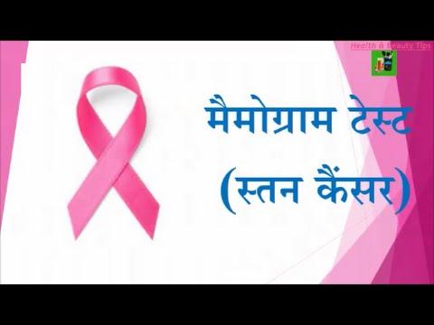 मैमोग्राम टेस्ट (स्तन कैंसर)