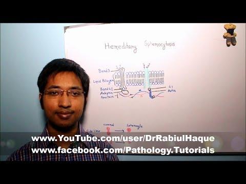 Hereditary Spherocytosis : Part 1 (HD)