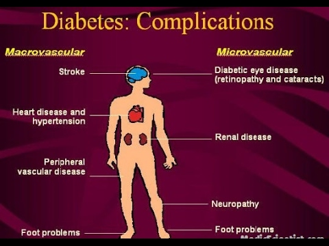Health | Diabetes Complications of Diabetes | What are diabetic complications? slide show