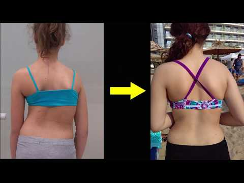 Advice and motivation for wearing your scoliosis brace