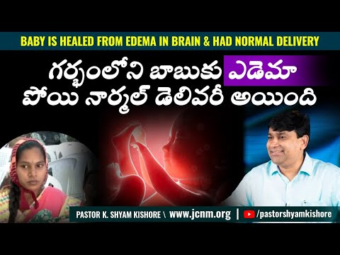Mr. & Mrs. Raju - Baby is healed from Edema in Brain & had normal delivery - Telugu