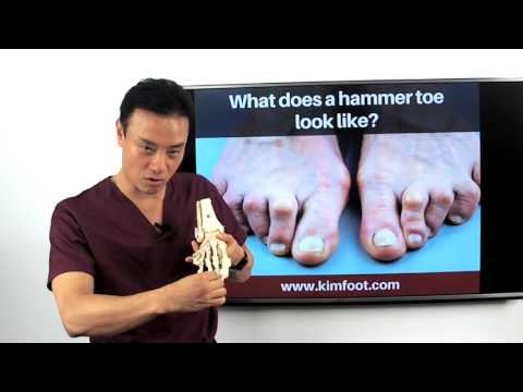 What does hammer toe look like?