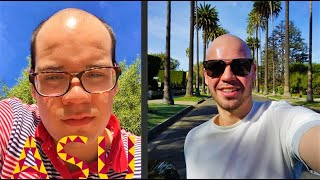 Download What It's Like Going Bald at 18 Video