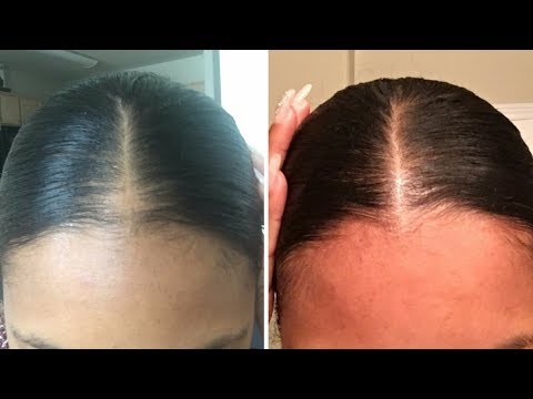 How I Gave Myself a Bald Spot and Grew it Back