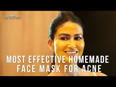 Most Effective Homemade Face Mask for Acne | How to Get Rid Of Acne & Acne Scars