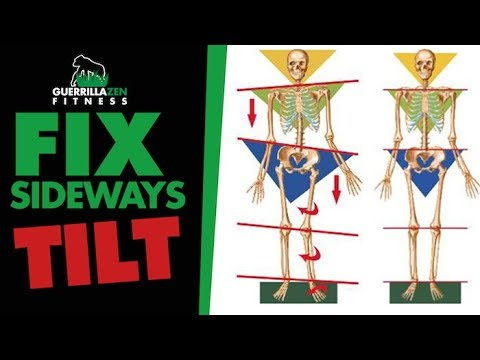 Uneven Hips aka Lateral Pelvic Tilt | Fix the ROOT cause!