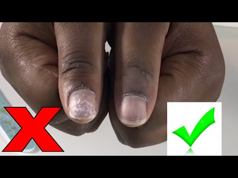 DIY | How to safely remove Acrylic/Fake nails at home - Comment enlever les faux ongles/Fait Maison