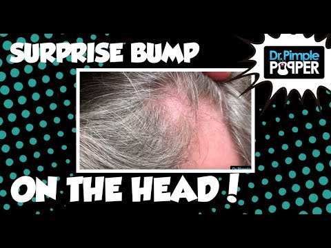 What is this on his Scalp? HINT: It's not a Pilar Cyst