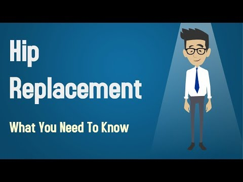 Hip Replacement - What You Need To Know