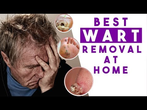 Treat Warts FAST - Powerful Wart Removal Treatment at Home