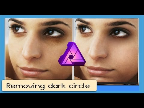 Removing Dark Circles in Affinity Photo
