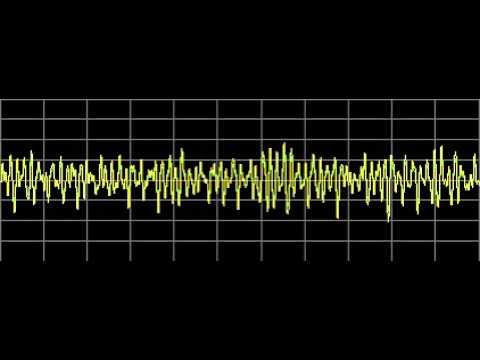 Meningitis - Rife Frequencies