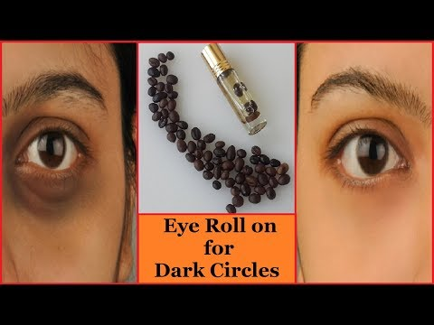 How to Remove Dark Circles Naturally in 3 Days   Get Rid of Dark Circles (100% Result)