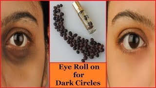 How to Remove Dark Circles Naturally in 3 Days | Get Rid of Dark Circles (100% Result)