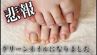 Download グリーンネイル発覚 Video