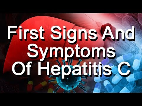 What Are The First Signs And Symptoms Of Hepatitis C?