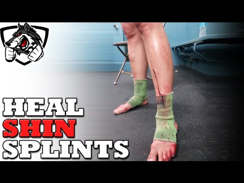 How To Heal Shin Splints from Running or Muay Thai