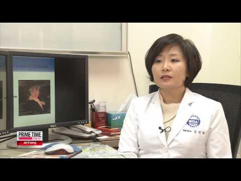 Korean Team Demonstrates Success of Cerebral Palsy Treatment [Arirang News]
