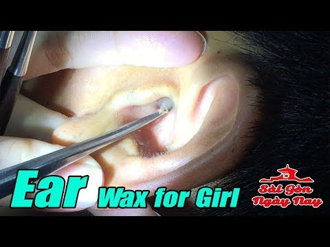 Ear wax Cleaning Picking Removal