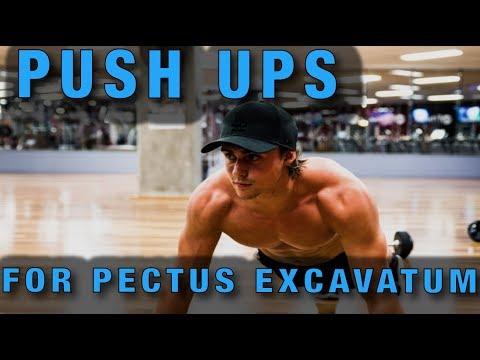 Push ups for Pectus Excavatum