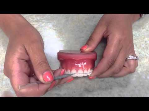 Healthy Gums In Orthodontics