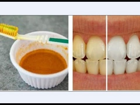 Teeth whitening at home with Coconut oil and Turmeric / Natural Master No.1
