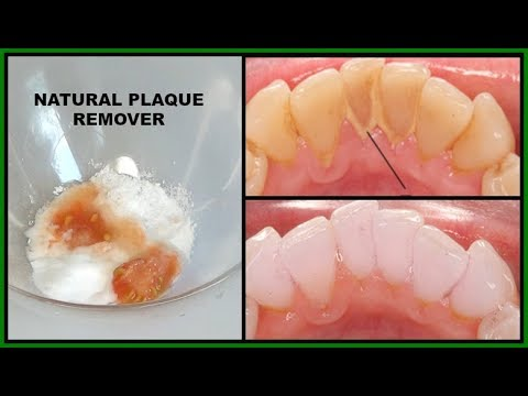 HOW TO REMOVE DENTAL PLAQUE + DISCOLORATION FROM TEETH USING NATURAL HOME REMEDY |Khichi Beauty
