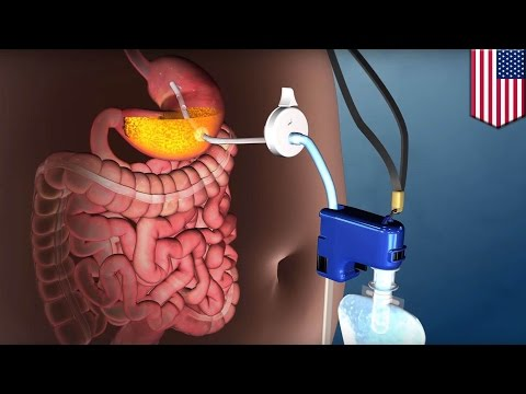 Extreme weight loss: 'abdominal vomiting' device AspireAssist approved by the FDA - TomoNews