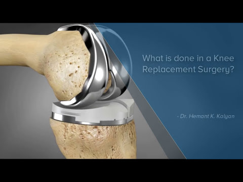 What is Done During A Knee Replacement Surgery? - Manipal Hospital