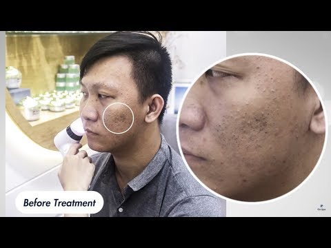 BIG PIMPLE and BLACKHEAD POPPING by DR LALIT KASANA (21MAY 2019)