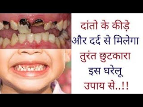 Home remedies for teeth इस घरेलू उपाय से दांतो के कीड़े और दर्द से मिलेगा तुरंत छुटकारा