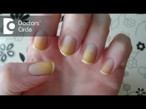 What can cause yellow discoloration of nails with dizziness and blackouts? - Dr. Sharat Honnatti