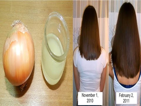 How to Grow Hair Naturally Fast Using Onion Juice and Eggs,Get rid of Frizzy hair