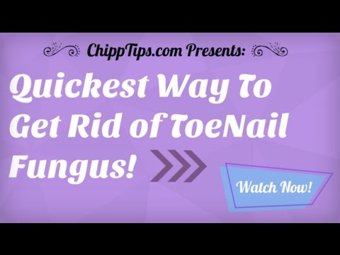 How to Get Rid of Toenail Fungus at Home | Getting Rid of Nail Fungus Fast