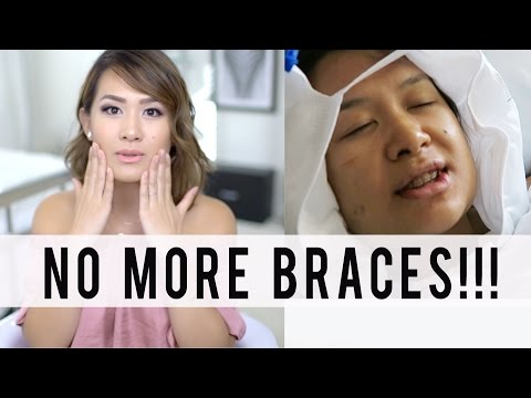 Taking OFF my Adult BRACES + Jaw Surgery Update | ANN LE