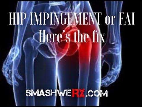 Fix That Hip Impingement FAST | Trevor Bachmeyer | SmashweRx