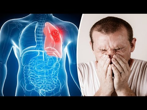 9 Unknown Lung Cancer Symptoms | Early Signs Of Lungs Cancer