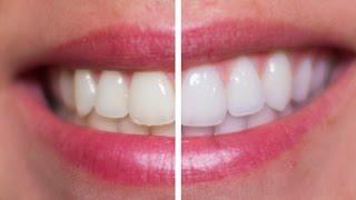 DIY Teeth Whitening Vs. Professional
