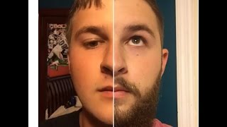 17 year old beard journey (timelapse update)