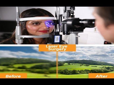 laser eye surgery or lasik eye surgery : all about laser eye surgery procedure, risks, side effects