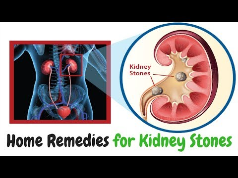 How To Pass Kidney Stones Fast at Home | Home Remedies for Kidney Stones