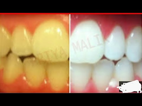 Dent blanche en 3 Minutes / Teeth Whitening At Home In 3 Minutes